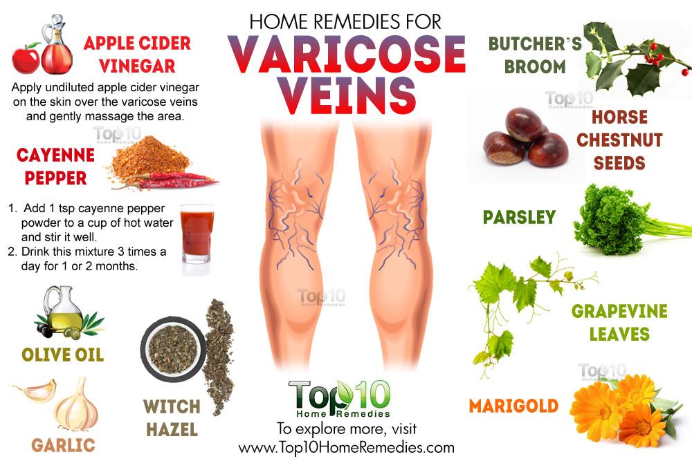 foods that heal varicose veins