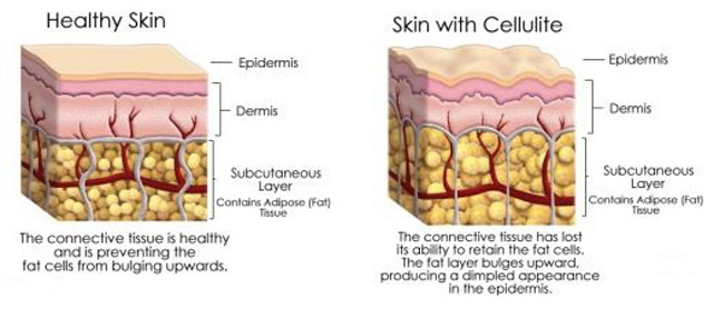 cellulite_diagram